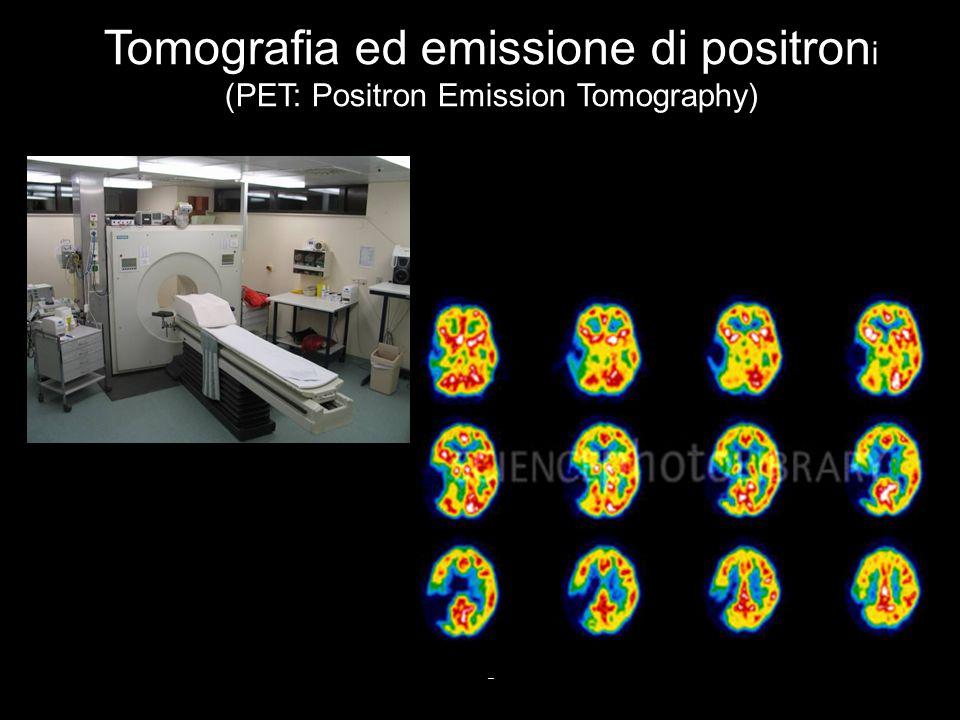Tomografia ed emissione di positroni (PET: Positron Emission Tomography)