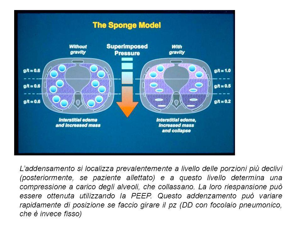 L'addensamento si localizza prevalentemente a livello delle porzioni più declivi (posteriormente, se paziente allettato) e a questo livello determina una compressione a carico degli alveoli, che collassano.