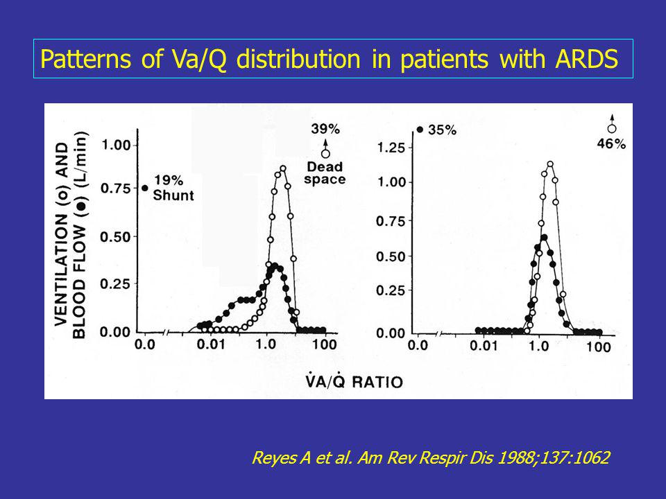 Patterns of Va/Q distribution in patients with ARDS