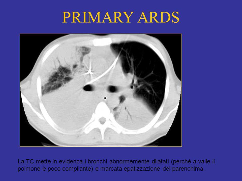 PRIMARY ARDS