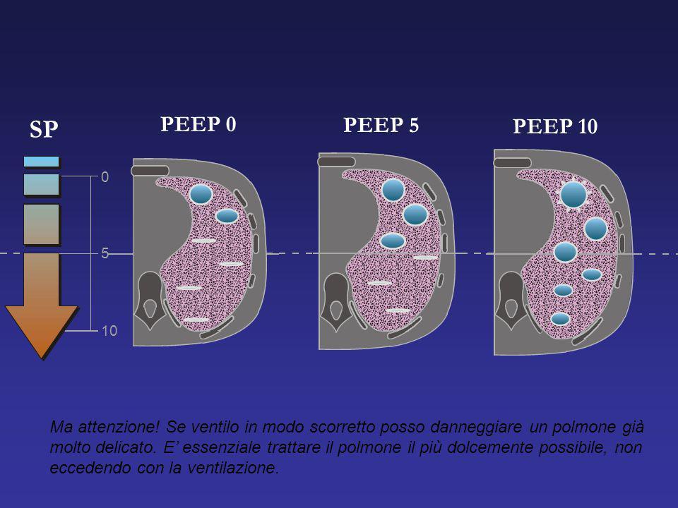 PEEP 0 SP. PEEP 5. PEEP 10. 5. 10.