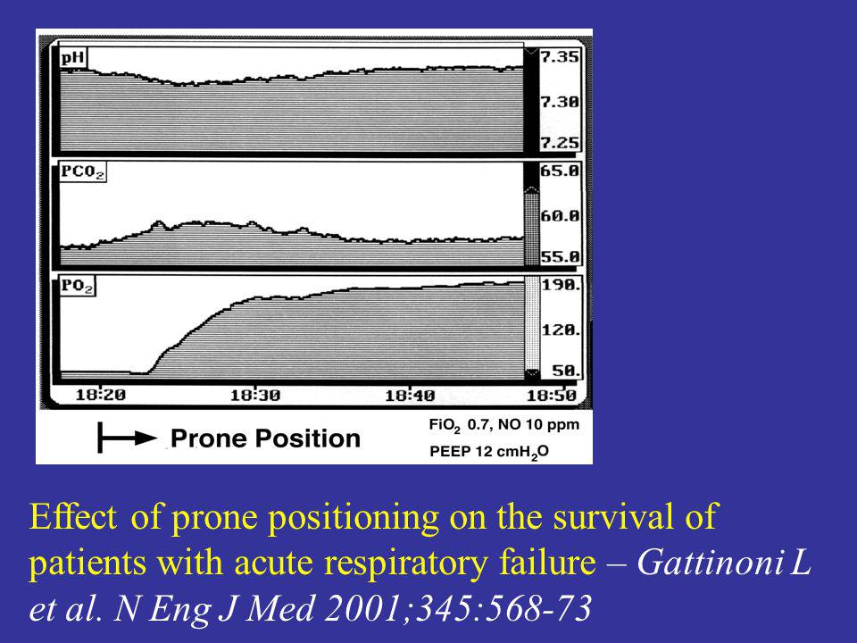 Effect of prone positioning on the survival of patients with acute respiratory failure – Gattinoni L et al.