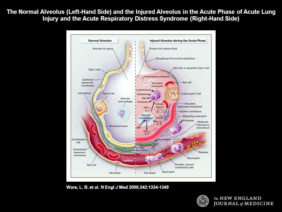 The Normal Alveolus (Left-Hand Side) and the Injured Alveolus in the Acute Phase of Acute Lung Injury and the Acute Respiratory Distress Syndrome (Right-Hand Side)