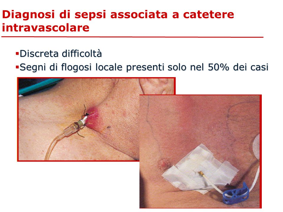 Diagnosi di sepsi associata a catetere intravascolare