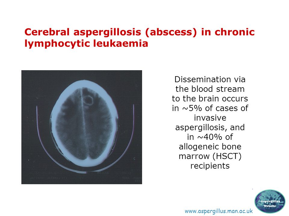 Cerebral aspergillosis (abscess) in chronic lymphocytic leukaemia