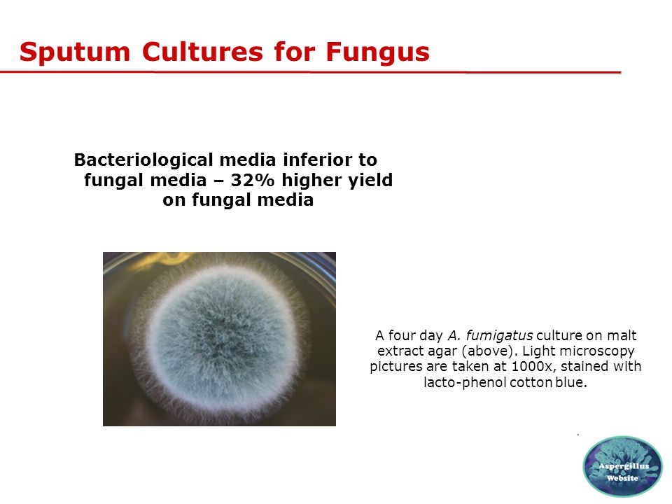 Sputum Cultures for Fungus