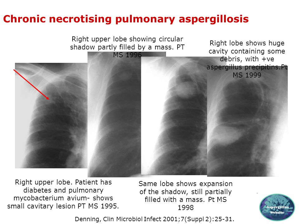Chronic necrotising pulmonary aspergillosis