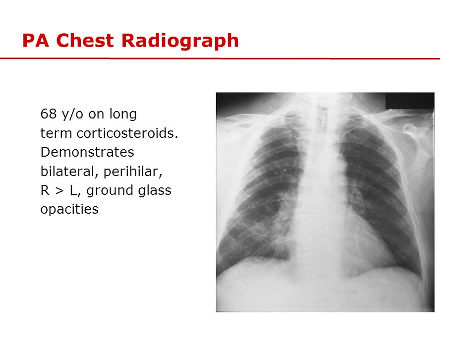 PA Chest Radiograph 68 y/o on long term corticosteroids. Demonstrates