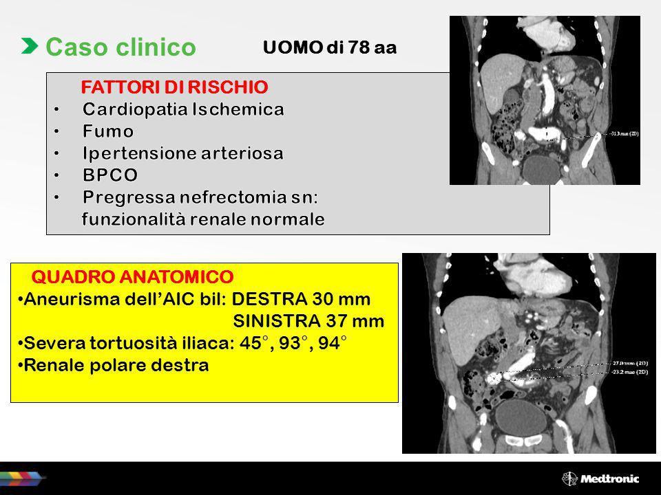 Caso clinico UOMO di 78 aa FATTORI DI RISCHIO Cardiopatia Ischemica