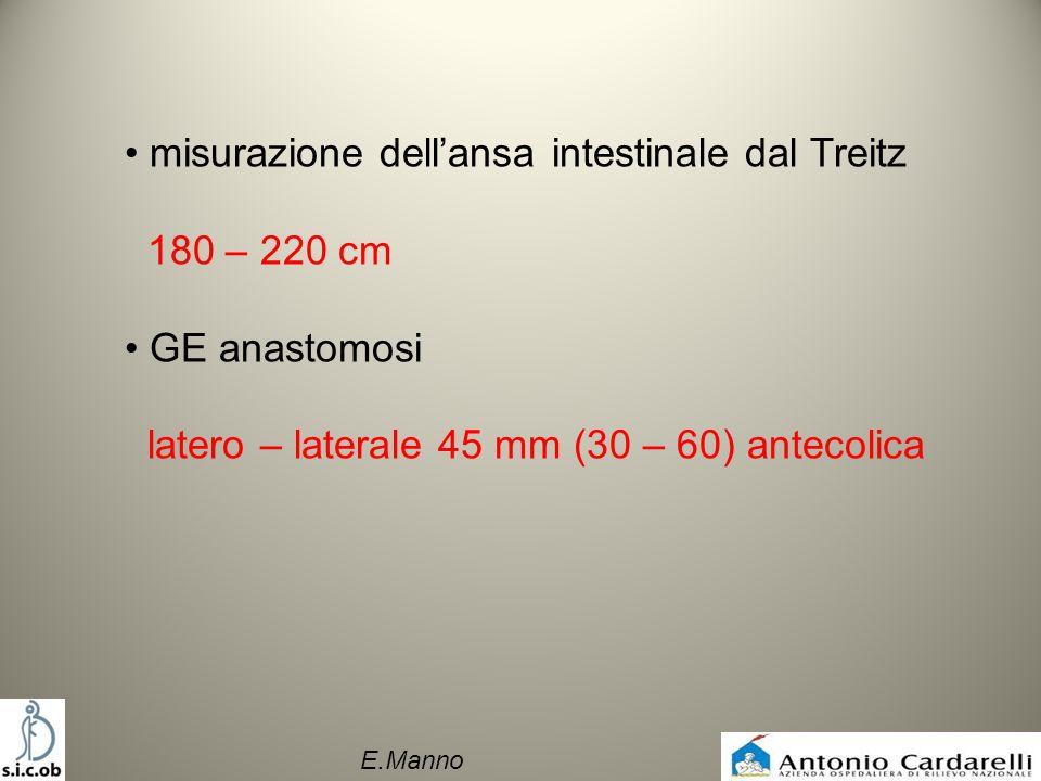 misurazione dell'ansa intestinale dal Treitz 180 – 220 cm
