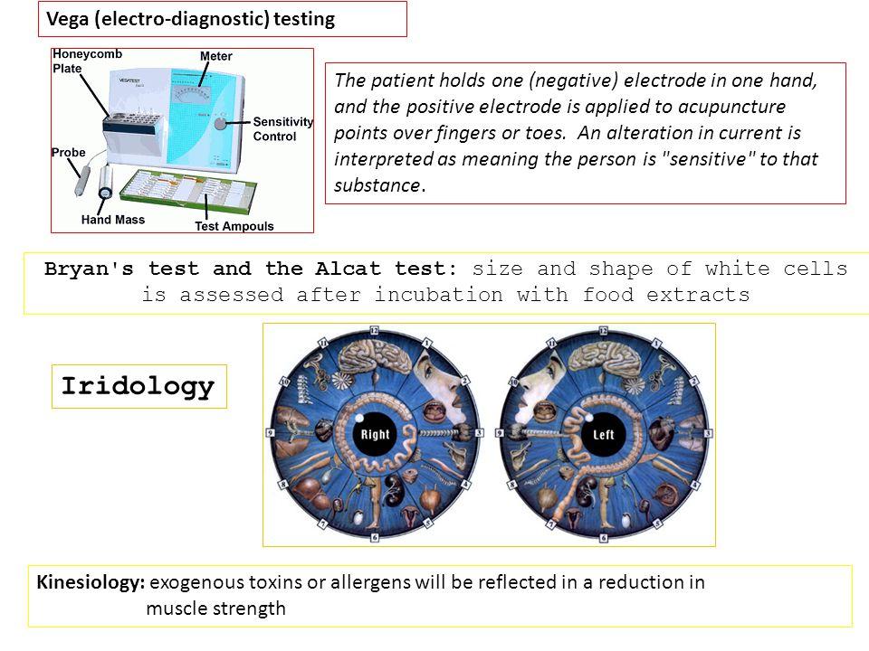 Iridology Vega (electro-diagnostic) testing