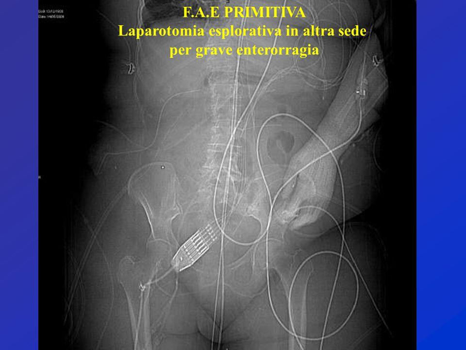 Laparotomia esplorativa in altra sede per grave enterorragia
