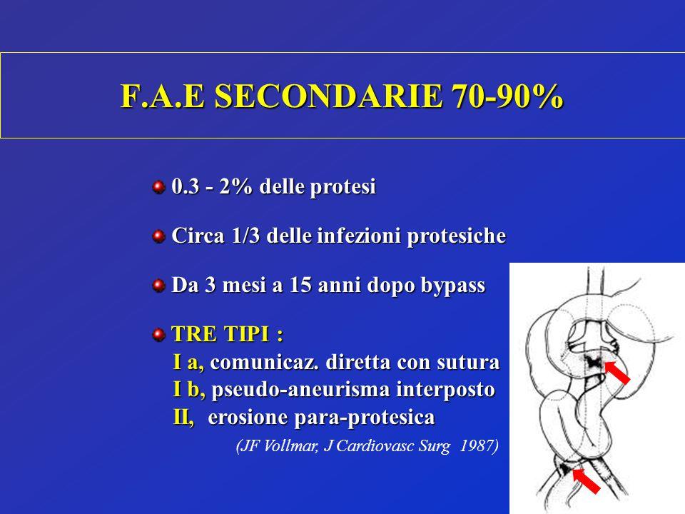 F.A.E SECONDARIE 70-90% 0.3 - 2% delle protesi