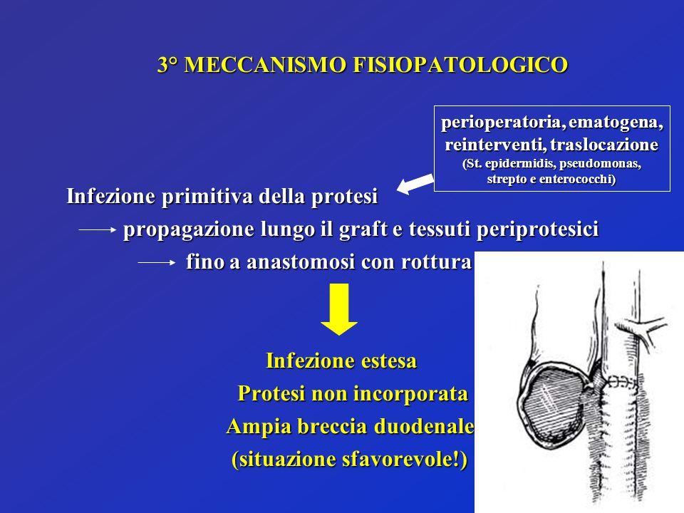 3° MECCANISMO FISIOPATOLOGICO