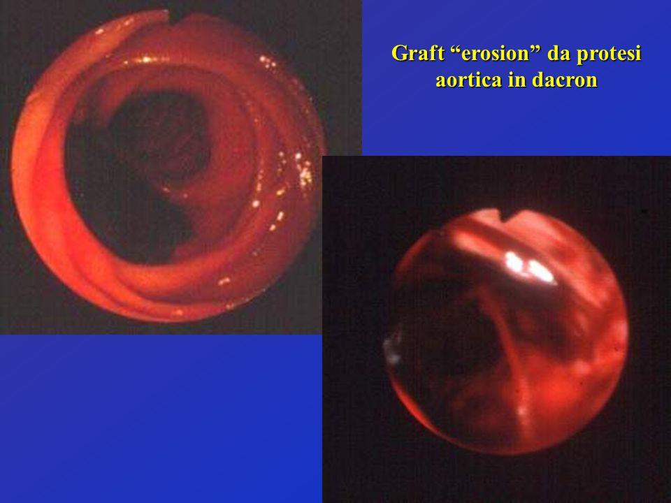 Graft erosion da protesi