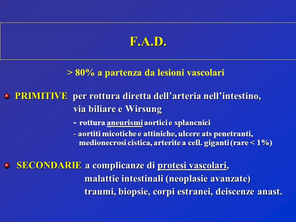 > 80% a partenza da lesioni vascolari