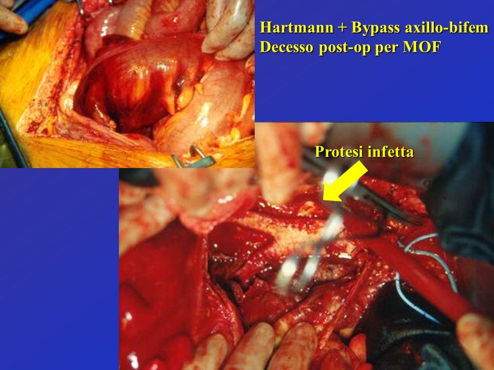 Hartmann + Bypass axillo-bifem Decesso post-op per MOF