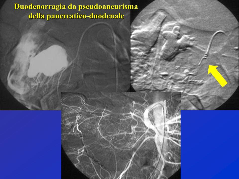 Duodenorragia da pseudoaneurisma della pancreatico-duodenale