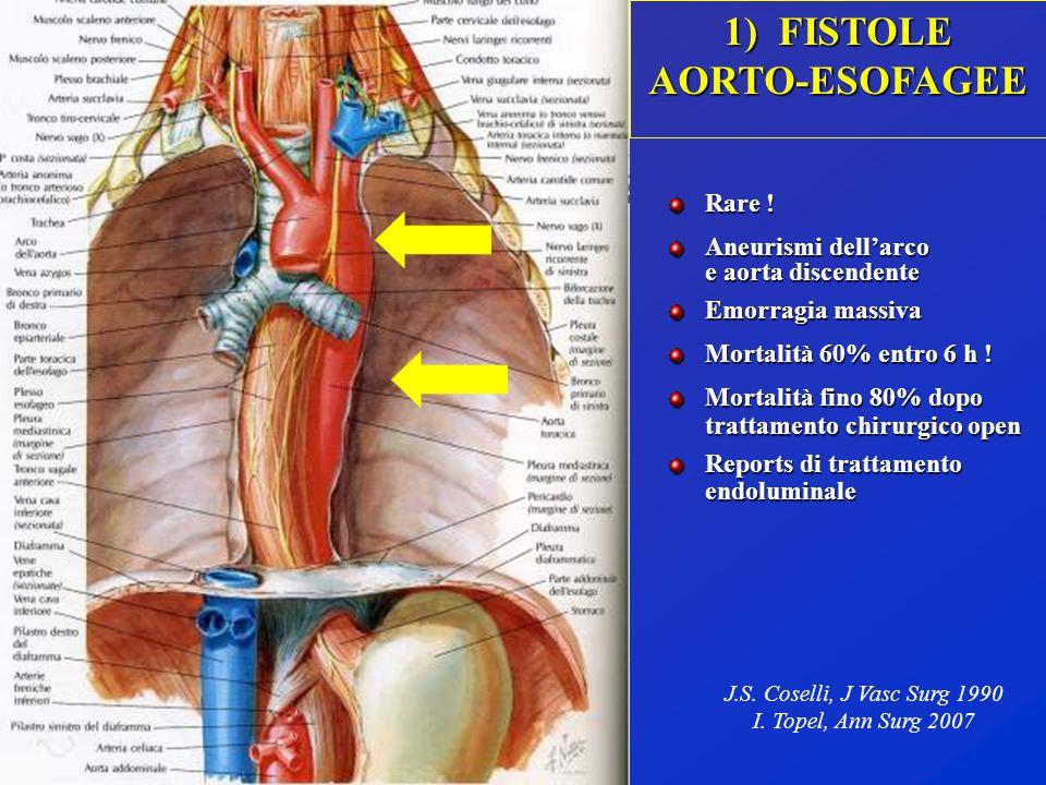 1) FISTOLE AORTO-ESOFAGEE