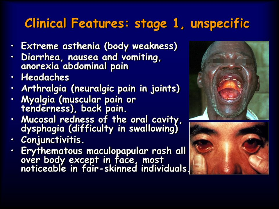 Clinical Features: stage 1, unspecific