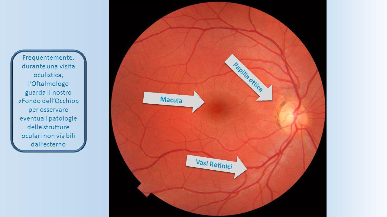 Frequentemente, durante una visita oculistica, l'Oftalmologo guarda il nostro «Fondo dell'Occhio» per osservare eventuali patologie delle strutture oculari non visibili dall'esterno