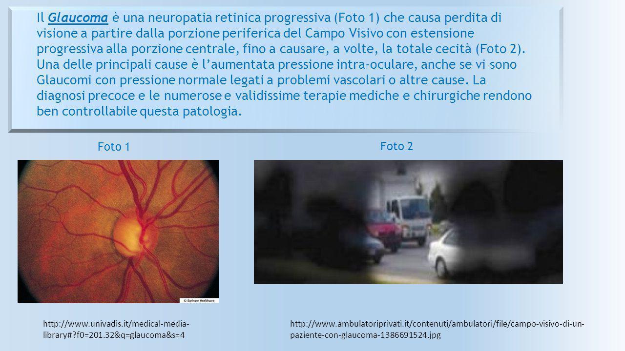 Il Glaucoma è una neuropatia retinica progressiva (Foto 1) che causa perdita di visione a partire dalla porzione periferica del Campo Visivo con estensione progressiva alla porzione centrale, fino a causare, a volte, la totale cecità (Foto 2). Una delle principali cause è l'aumentata pressione intra-oculare, anche se vi sono Glaucomi con pressione normale legati a problemi vascolari o altre cause. La diagnosi precoce e le numerose e validissime terapie mediche e chirurgiche rendono ben controllabile questa patologia.