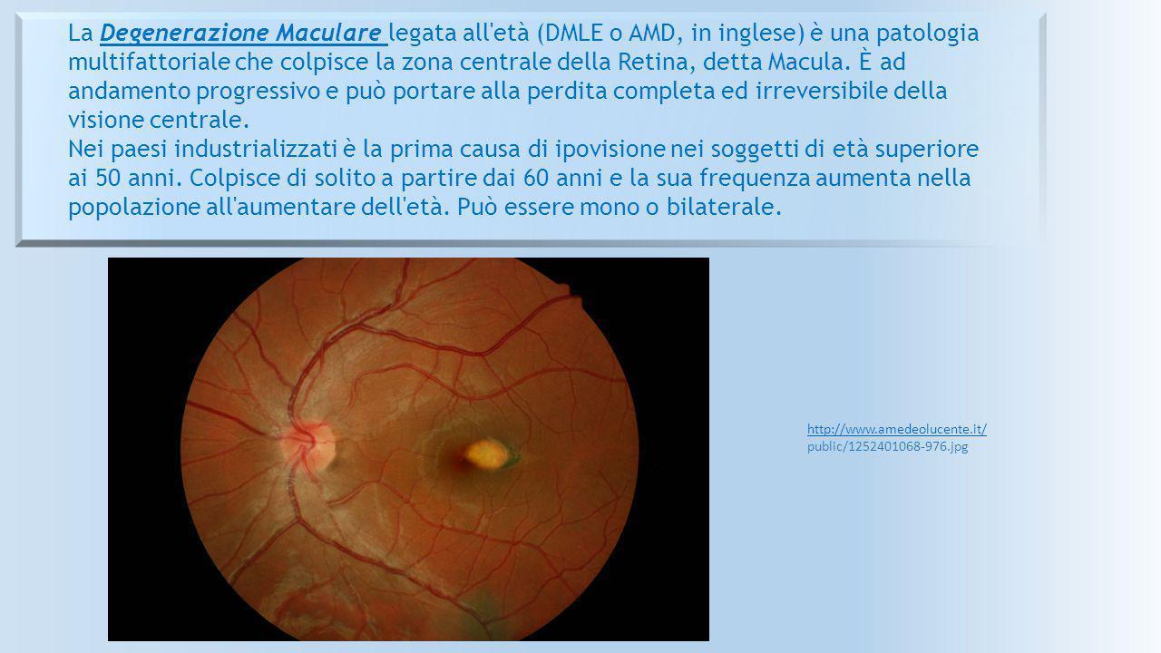 La Degenerazione Maculare legata all età (DMLE o AMD, in inglese) è una patologia multifattoriale che colpisce la zona centrale della Retina, detta Macula. È ad andamento progressivo e può portare alla perdita completa ed irreversibile della visione centrale.