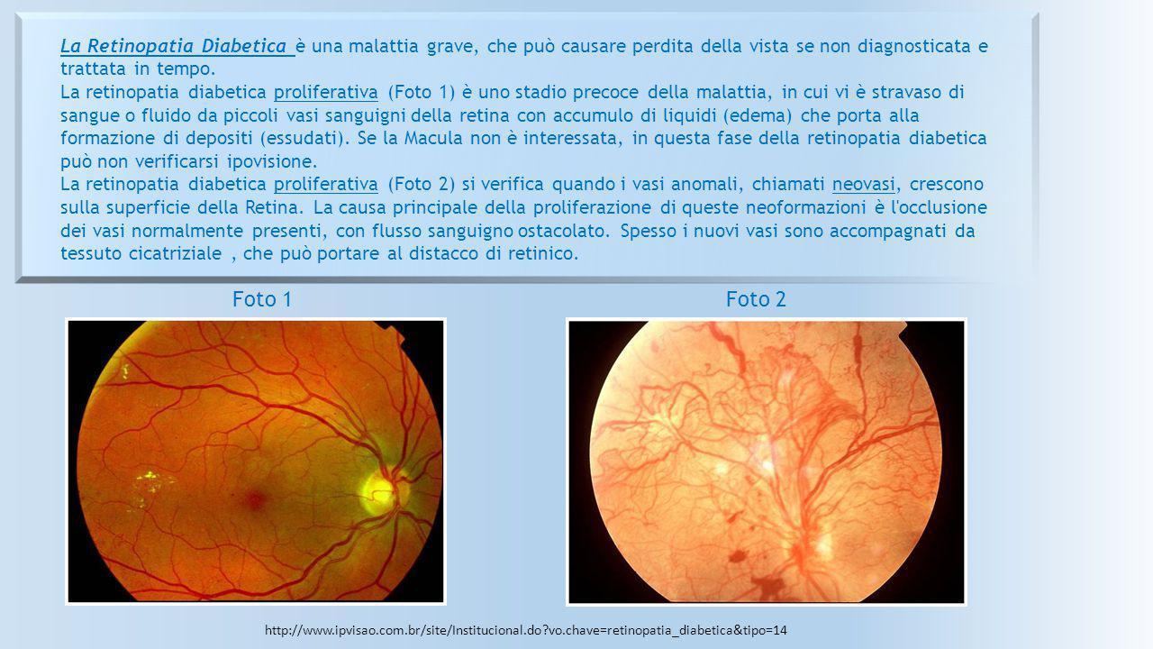 La Retinopatia Diabetica è una malattia grave, che può causare perdita della vista se non diagnosticata e trattata in tempo. La retinopatia diabetica proliferativa (Foto 1) è uno stadio precoce della malattia, in cui vi è stravaso di sangue o fluido da piccoli vasi sanguigni della retina con accumulo di liquidi (edema) che porta alla formazione di depositi (essudati). Se la Macula non è interessata, in questa fase della retinopatia diabetica può non verificarsi ipovisione. La retinopatia diabetica proliferativa (Foto 2) si verifica quando i vasi anomali, chiamati neovasi, crescono sulla superficie della Retina. La causa principale della proliferazione di queste neoformazioni è l occlusione dei vasi normalmente presenti, con flusso sanguigno ostacolato. Spesso i nuovi vasi sono accompagnati da tessuto cicatriziale , che può portare al distacco di retinico.