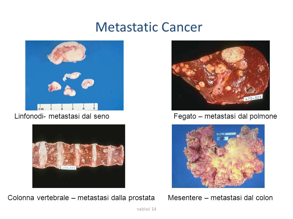 Metastatic Cancer Linfonodi- metastasi dal seno