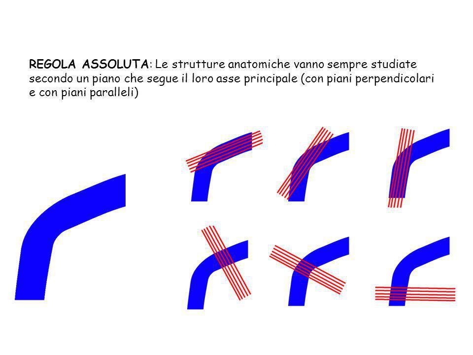 REGOLA ASSOLUTA: Le strutture anatomiche vanno sempre studiate secondo un piano che segue il loro asse principale (con piani perpendicolari e con piani paralleli)