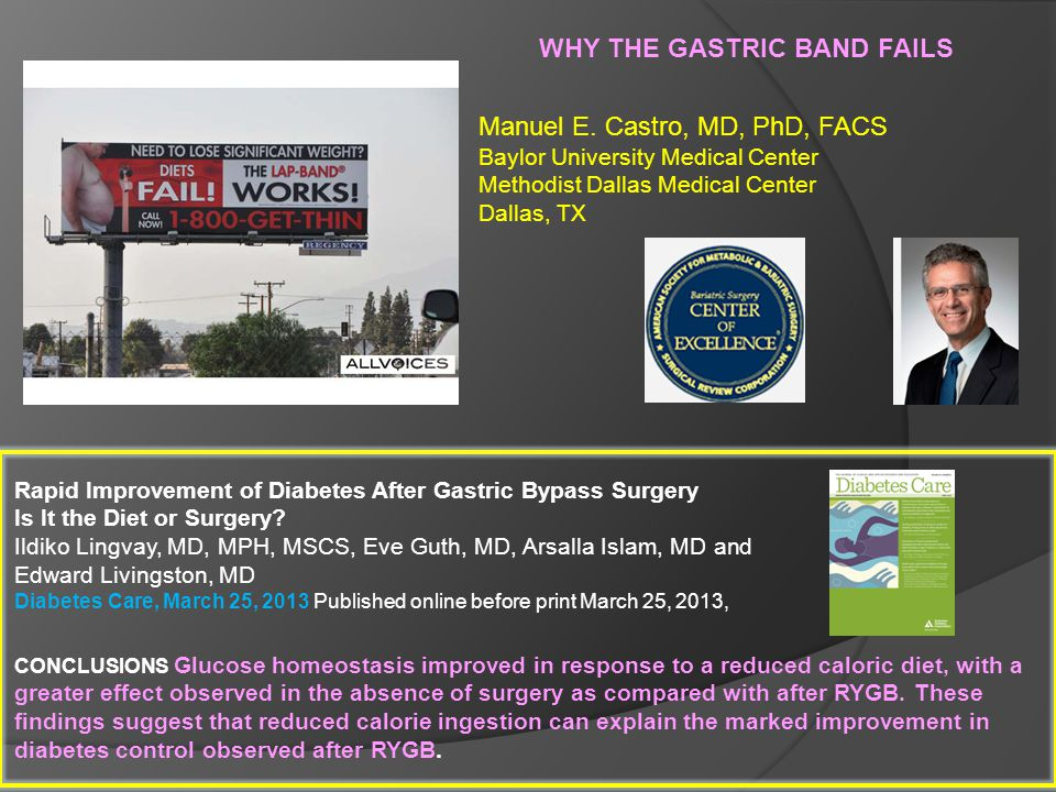 WHY THE GASTRIC BAND FAILS