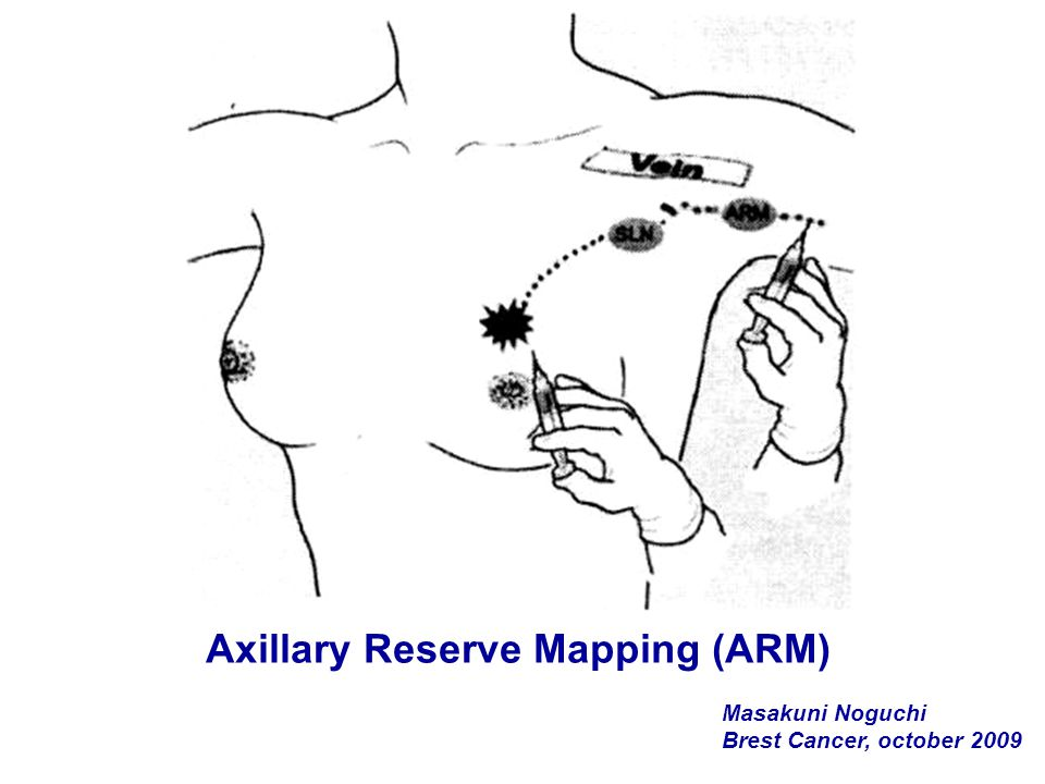 Axillary Reserve Mapping (ARM)
