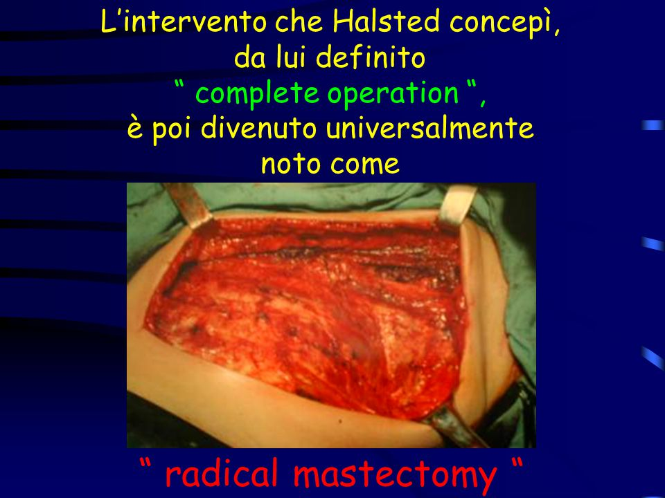 radical mastectomy L'intervento che Halsted concepì,