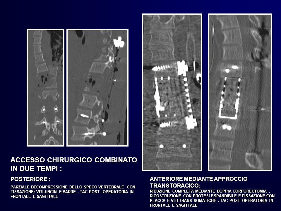 ACCESSO CHIRURGICO COMBINATO IN DUE TEMPI :
