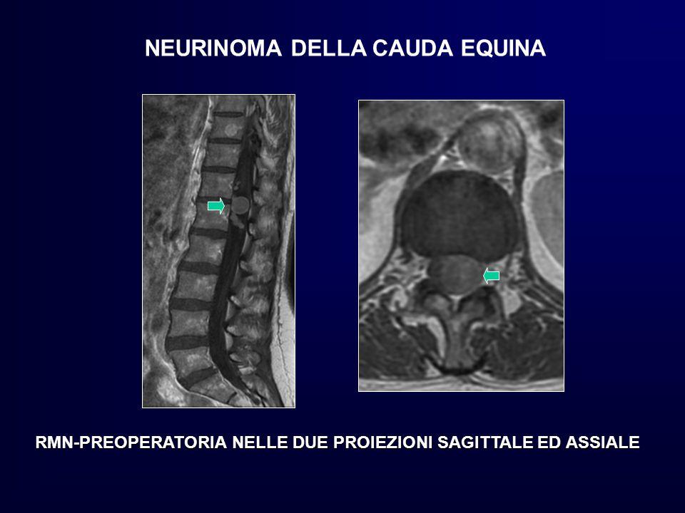 NEURINOMA DELLA CAUDA EQUINA