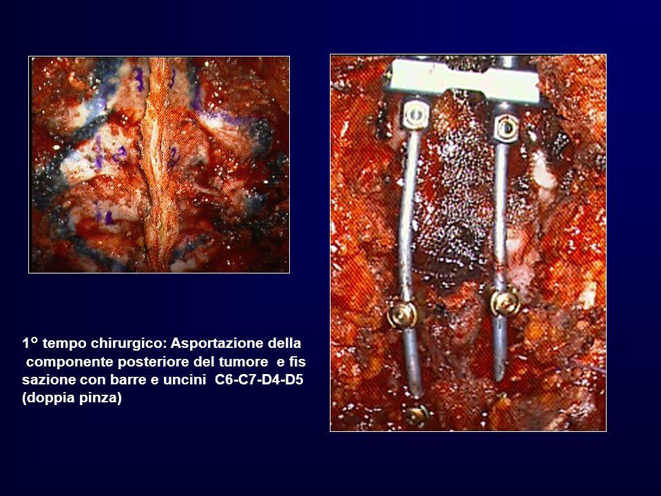 1° tempo chirurgico: Asportazione della