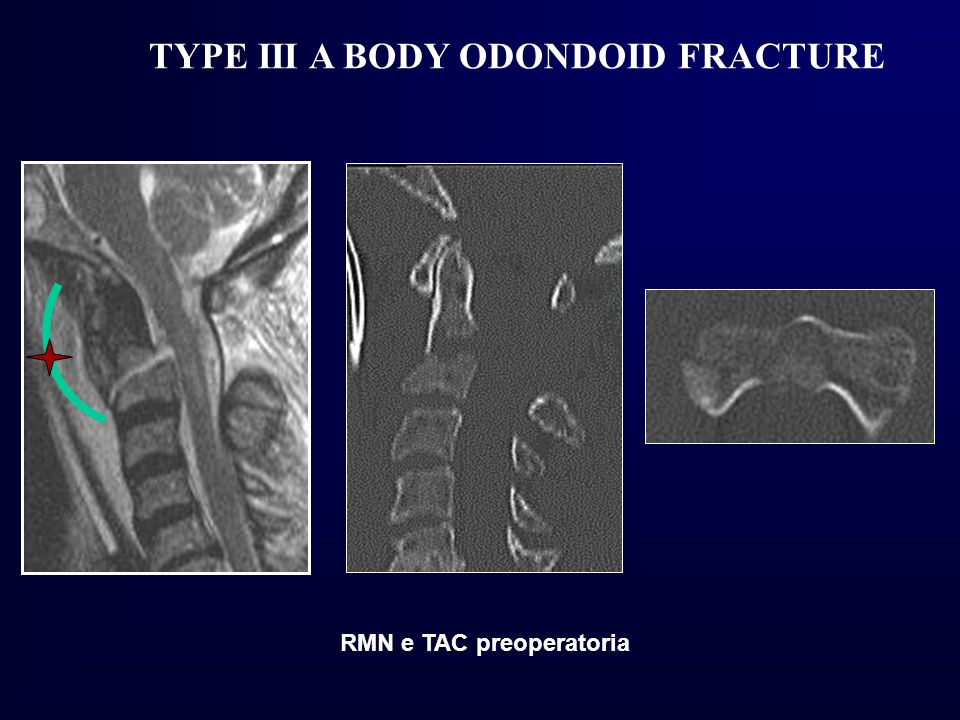 TYPE III A BODY ODONDOID FRACTURE