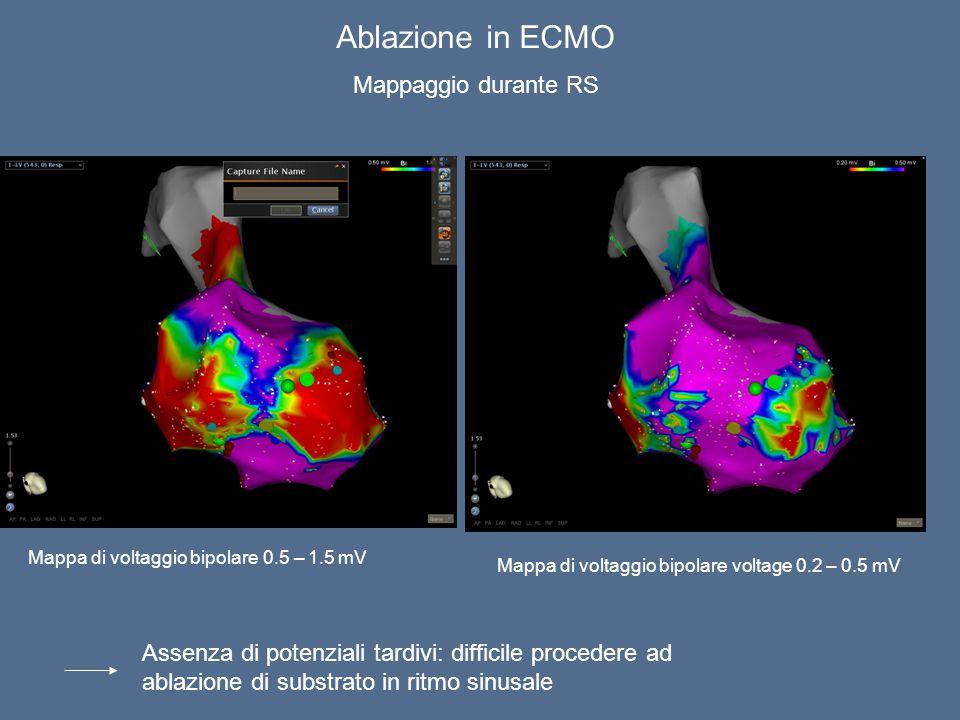 Ablazione in ECMO Mappaggio durante RS