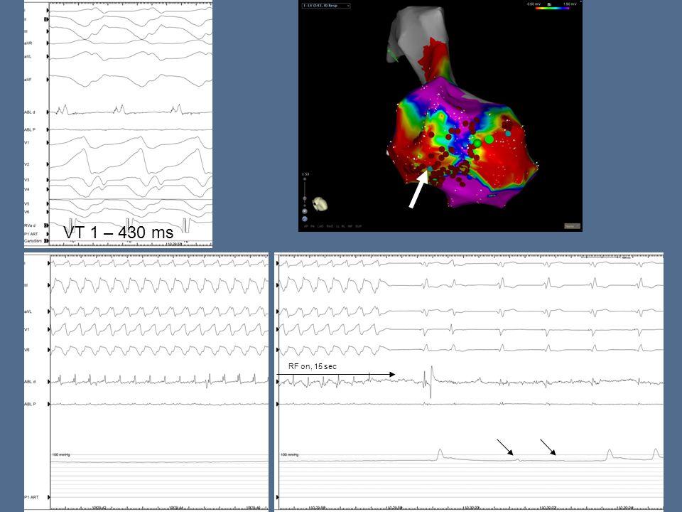VT 1 – 430 ms RF on, 15 sec