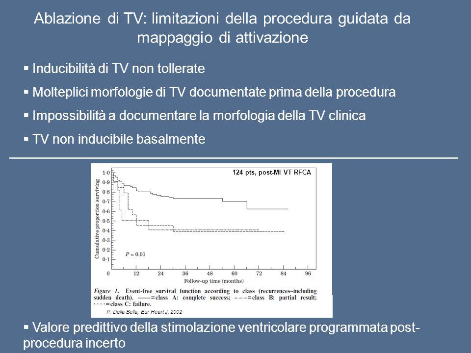 Ablazione di TV: limitazioni della procedura guidata da mappaggio di attivazione