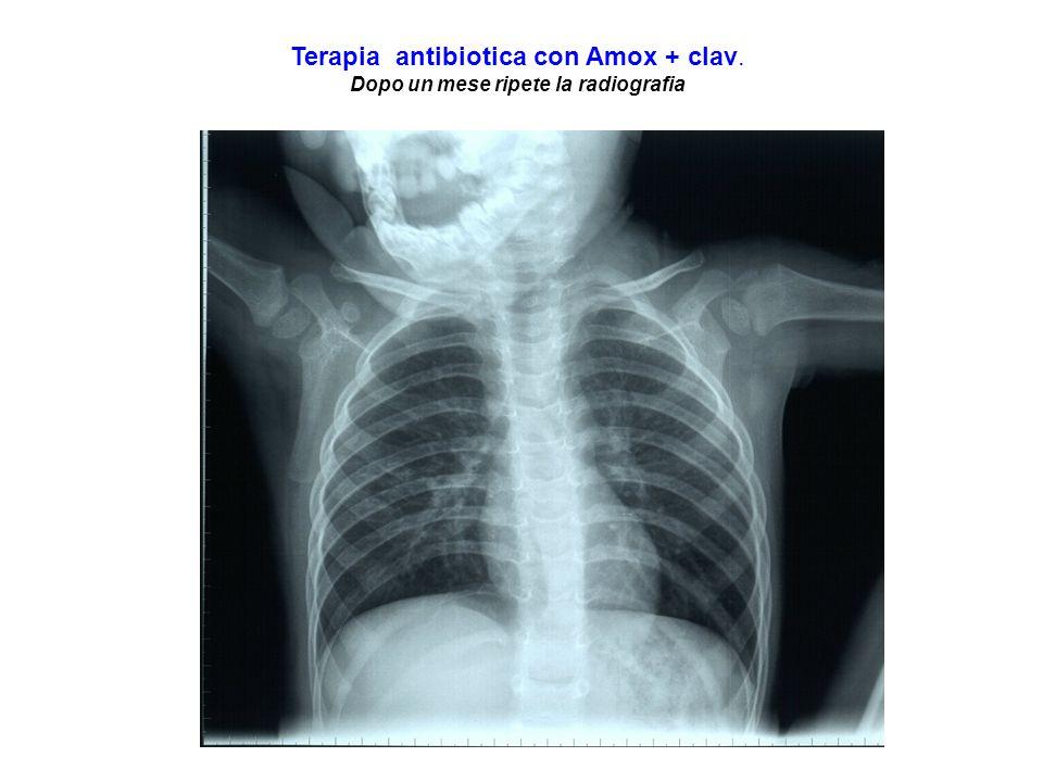 Dopo un mese ripete la radiografia