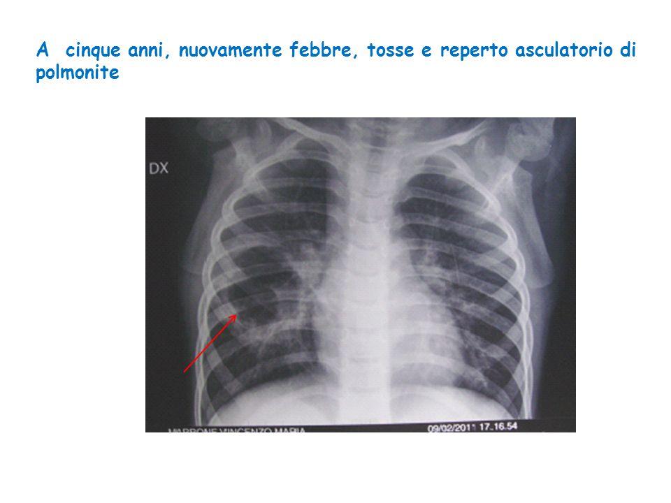 A cinque anni, nuovamente febbre, tosse e reperto asculatorio di polmonite