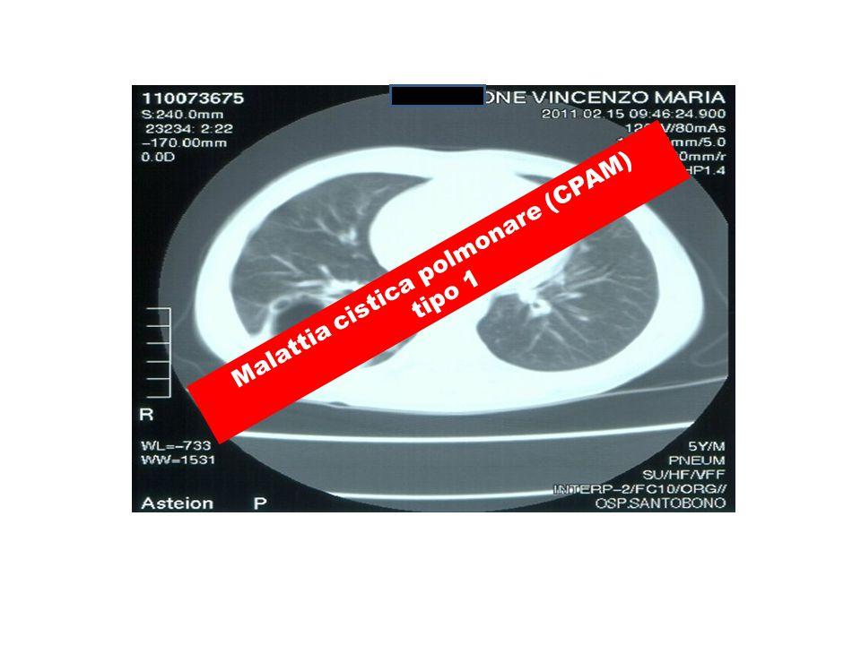 Malattia cistica polmonare (CPAM) tipo 1