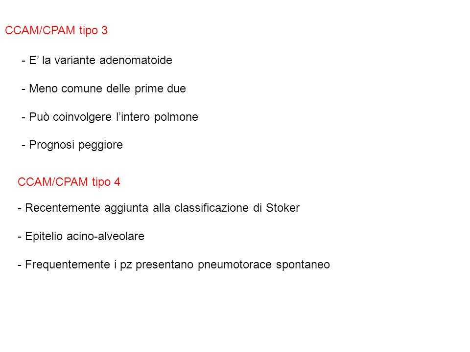CCAM/CPAM tipo 3 E' la variante adenomatoide. - Meno comune delle prime due. Può coinvolgere l'intero polmone.