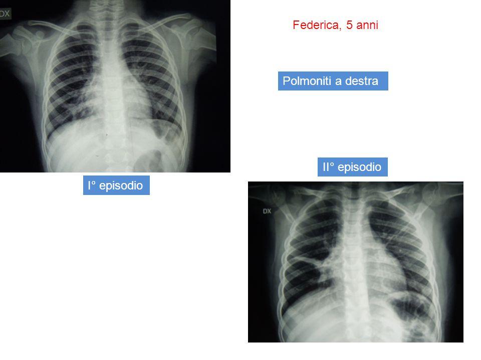 Federica, 5 anni Polmoniti a destra II° episodio I° episodio