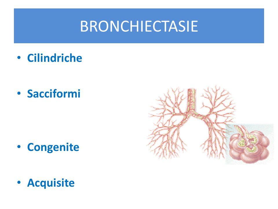 BRONCHIECTASIE Cilindriche Sacciformi Congenite Acquisite