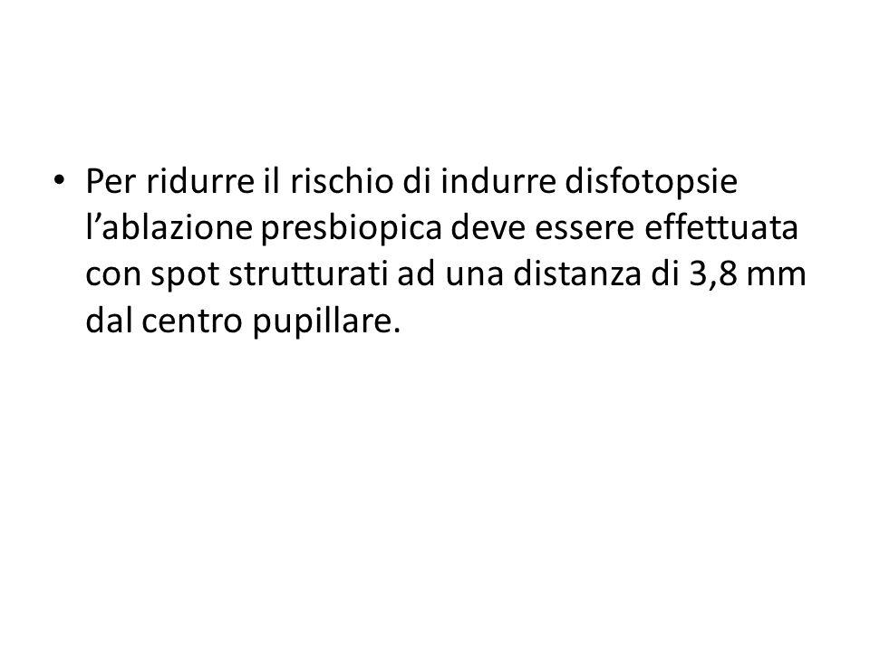 Per ridurre il rischio di indurre disfotopsie l'ablazione presbiopica deve essere effettuata con spot strutturati ad una distanza di 3,8 mm dal centro pupillare.