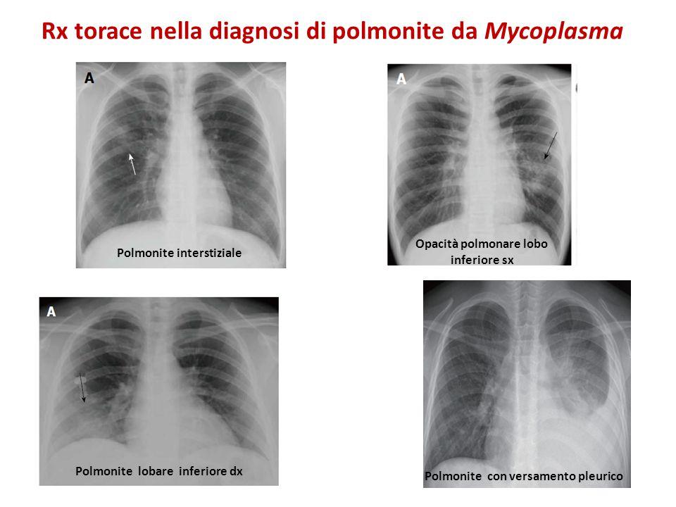 Rx torace nella diagnosi di polmonite da Mycoplasma