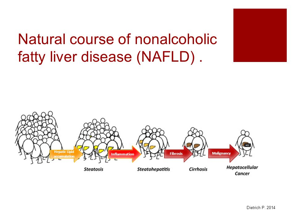 Natural course of nonalcoholic fatty liver disease (NAFLD) .