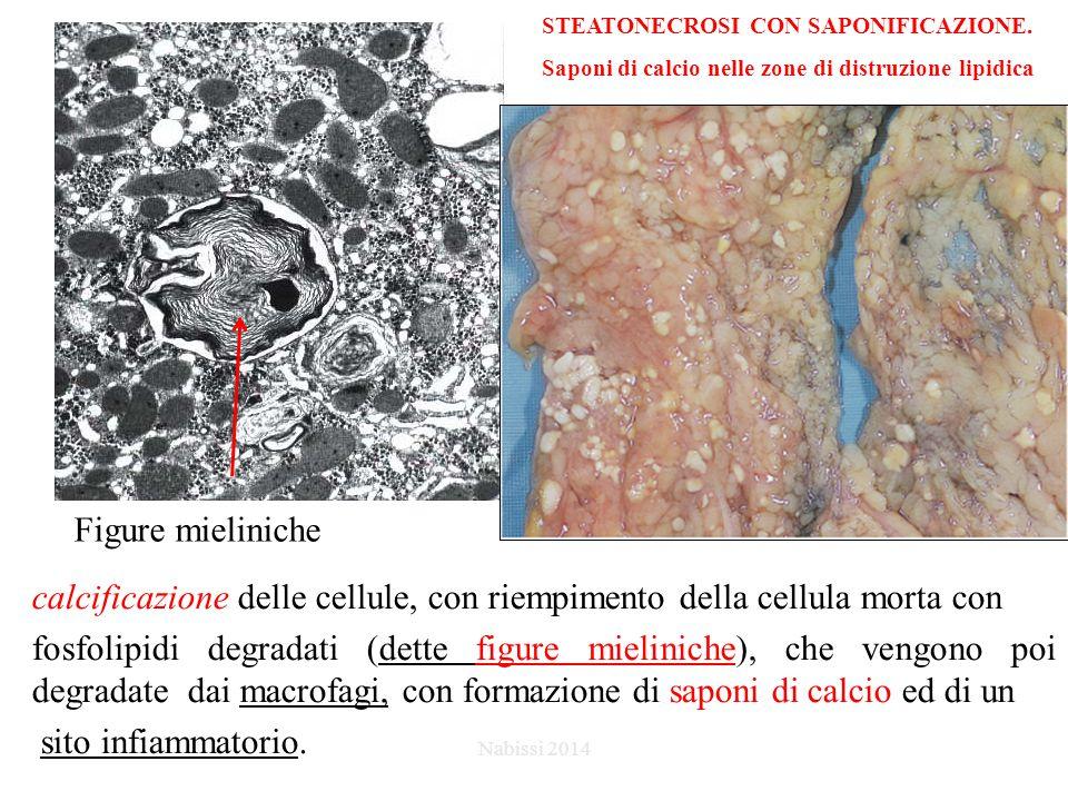 calcificazione delle cellule, con riempimento della cellula morta con